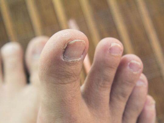 Everything you need to know about toenail fungus cream