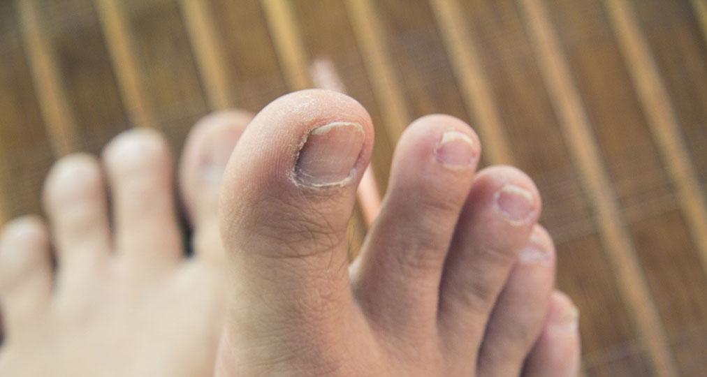 feet and toenails