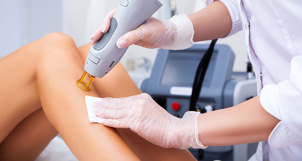 laser hair removal procedure