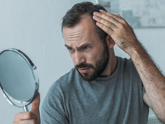 Everything you should know about alopecia