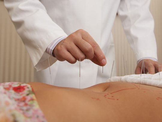 Acupuncture: your guide to mental & physical wellbeing