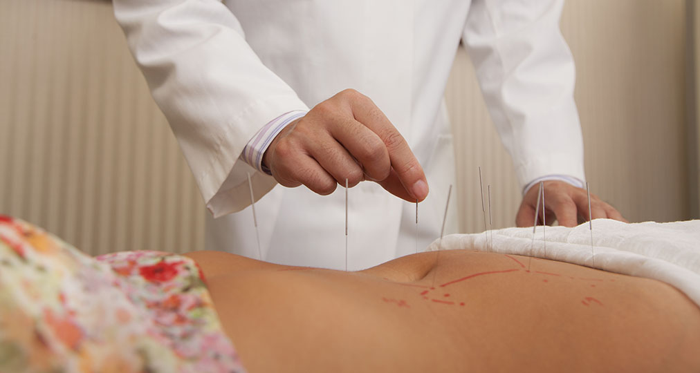 woman during acupuncture treatment